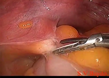 Laparoscopic radical hysterectomy Piver II